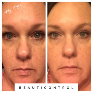 #BeautiControl Dark Spot Corrector